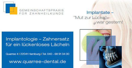 Implantologie – Zahnersatz für ein lückenloses Lächeln