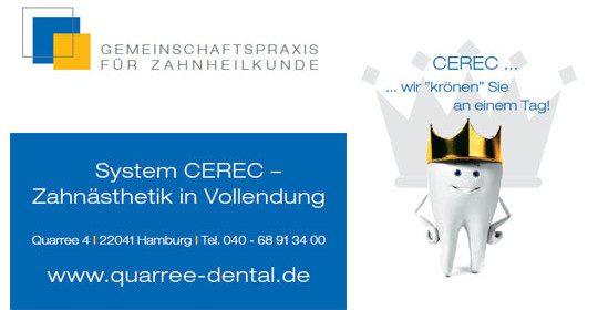 System CEREC – Zahnästhetik in Vollendung