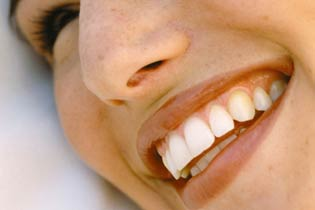 quarree-dental-veneers