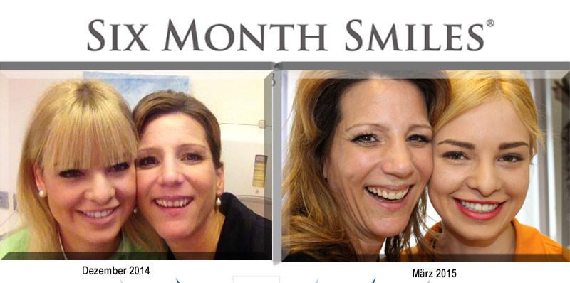 Mein Leben mit SIX MONTH SMILES