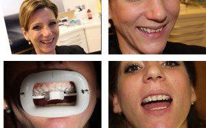 Der Weg zu geraden Zähnen