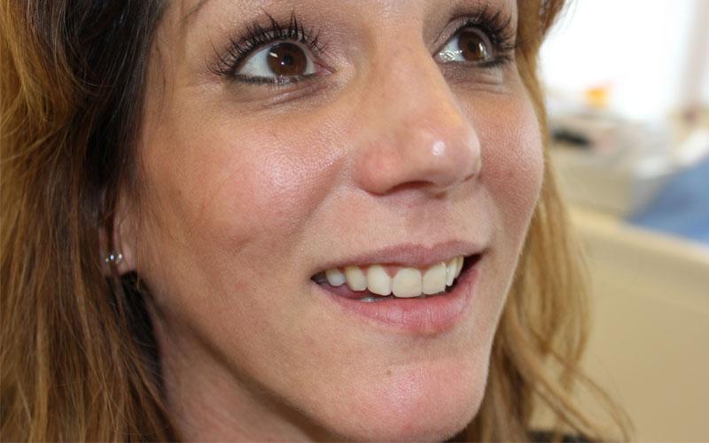 SIX MONTH SMILES - mein neues schönes Lachen mit geraden Zähnen