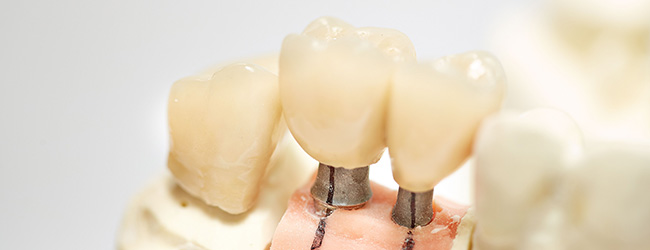 implantataufbau-quarree-dental