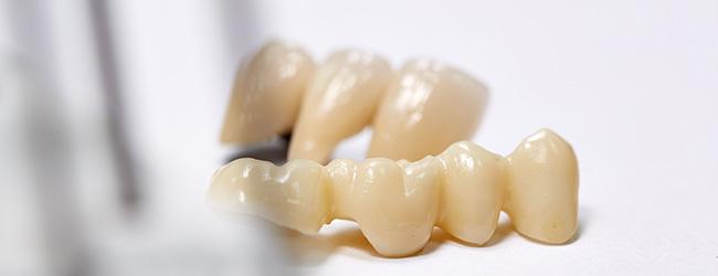 quarree-dental-bruecken