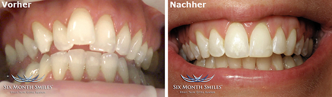 quarree-dental-sms-vorher-nacher-3