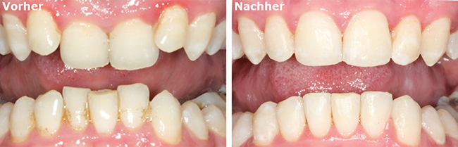 quarree-dental-sms-vorher-nacher-6