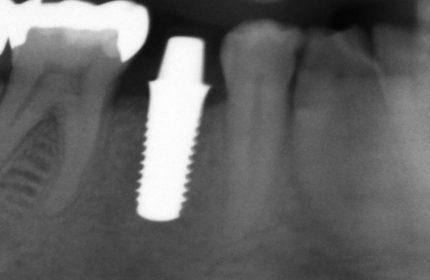 Weiße Zahnimplantate