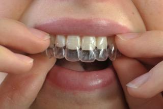Wir schenken Ihnen schöne und gerade Zähne mit Hilfe der Aligner-Technologie!